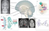 Neural circuitry of depression
